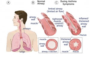 What Is The Difference Between Copd And Asthma