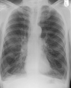 COPD Chest Xray